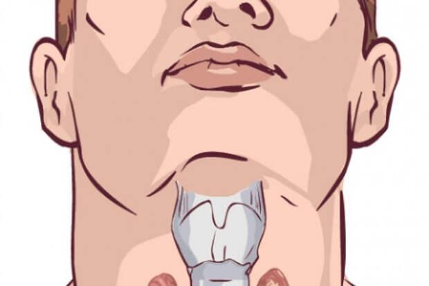 Что делать, если щитовидная железа ослаблена: 7 советов
