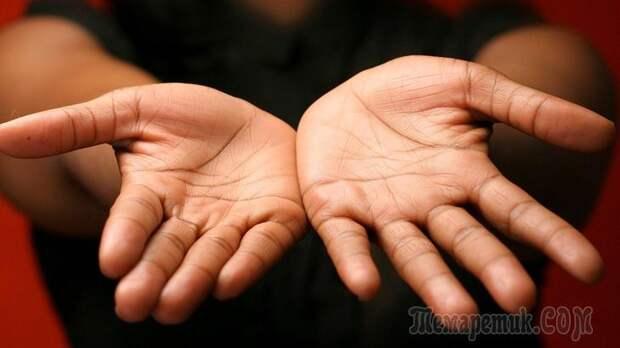 Заболевания, о которых могут рассказать ваши руки...