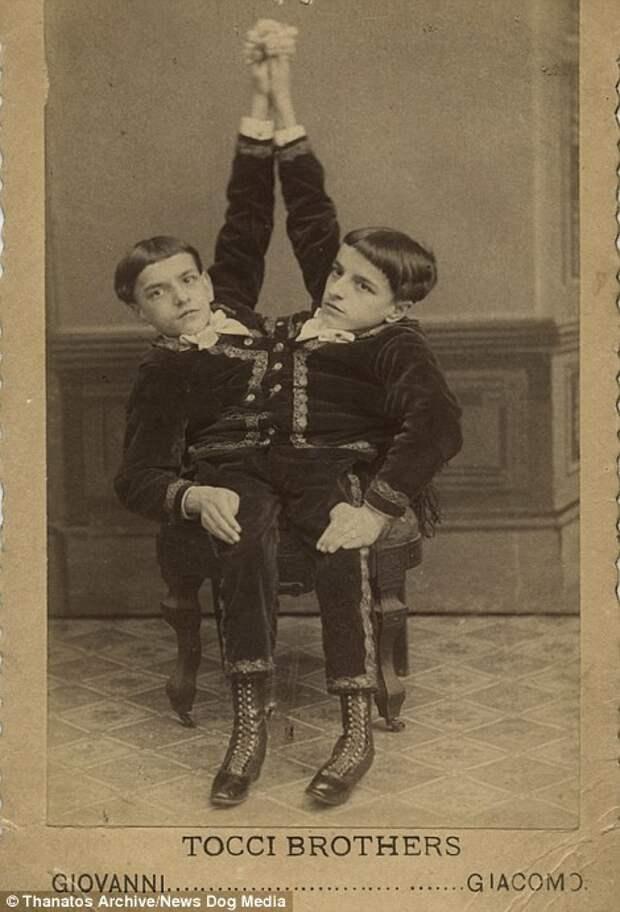 А также сиамские близнецы. На фото — братья Точчи деформация, люди