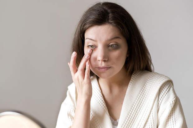 Синяки под глазами могут быть признаком серьёзных заболеваний