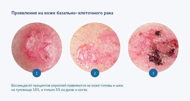 Проявления на коже базально-клеточного рака