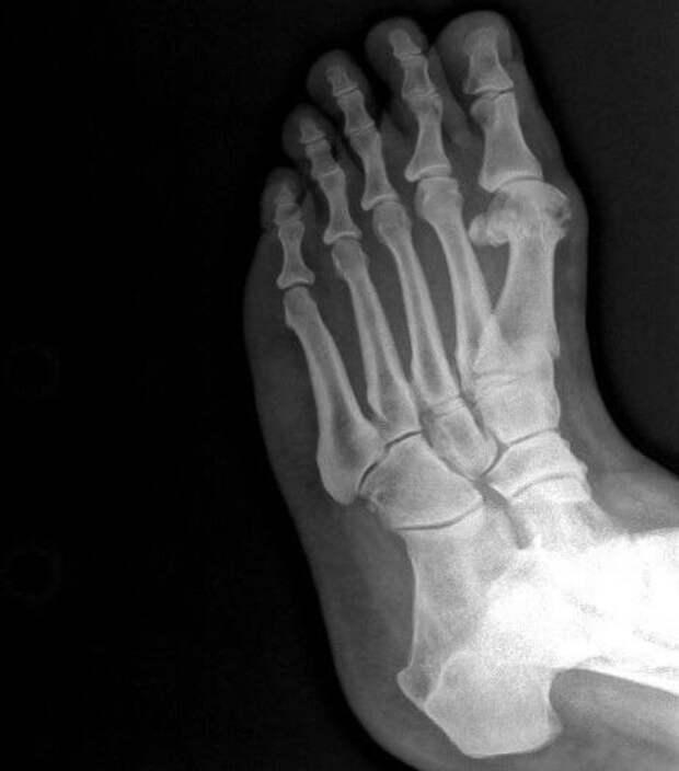 15 впечатляющих рентгеновских снимков, показывающих мир с новой стороны