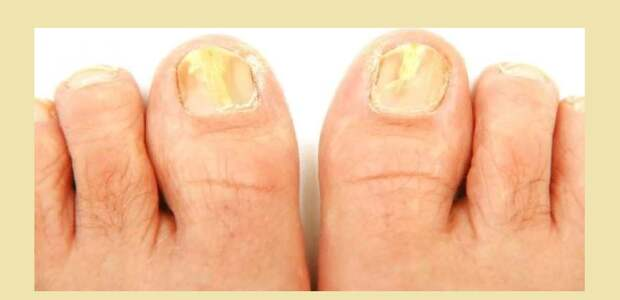 Грибковая эпидермофития ногтей на пальцах ног