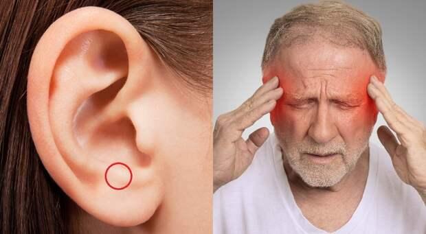 точечный массаж ушей при головной боли