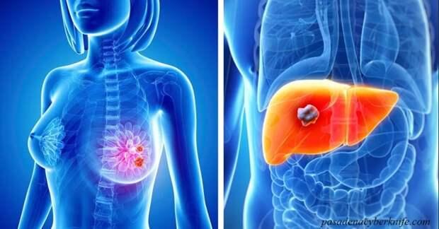 Опубликованы сведения Минздрава России о том, в каких регионах чаще всего заболевают раком