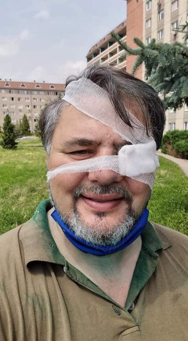 Нацисты напали на известного журналиста Руслана Коцабу