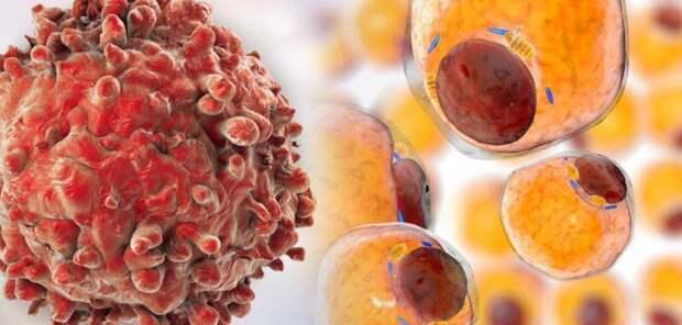 Новый ингибитор LAT1 может ускорить лечение рака