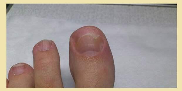 Грибковые патологии ногтей на большом и других пальцах ног
