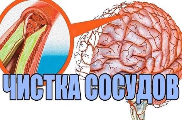 3 несложных рецепта народной медицины для сосудов головного мозга