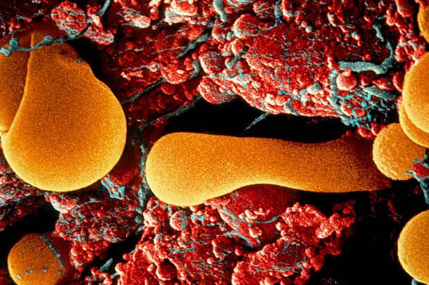 Особый механизм в иммунной системе человека защищает его от аутоиммунных заболеваний