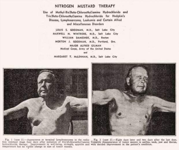 Популярная история Иприта — от траншей до химиотерапии (20 фото)