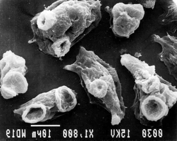 Идеальный убийца — амеба, поедающая мозг