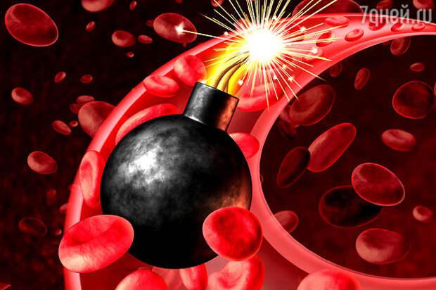 Холестериновые бомбы: продукты, которые приводят к закупорке сосудов и ускоряют их старение