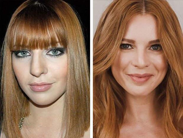 ⭐️ 5 знаменитостей, которые сделали ринопластику и стали только красивее