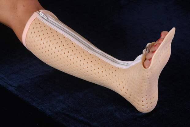 Турбокаст обеспечивает безупречное прилегание и почти не ограничивает в движениях. Особенно удобен пластиковый гипс на ноге, он дает возможность носить обувь и передвигаться с большим комфортом.