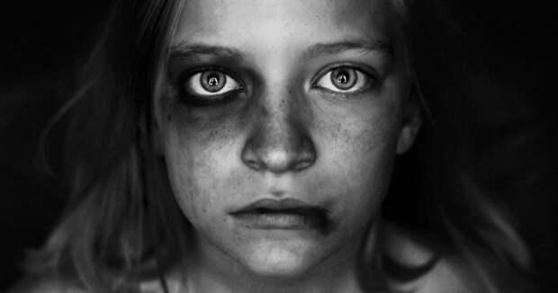 Эстонская «Мать года» оказалась садисткой иполучила срок заиздевательства над детьми