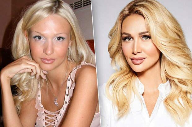 Российские звезды, которые изменили себя до неузнаваемости