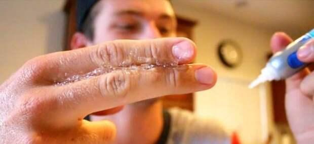 Неприятность эту мы переживём: что делать, если суперклей попал на пальцы?