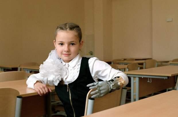 А это девочка, которая ходит в обычную школу с протезом руки (фото с сайта The-Village.ru)