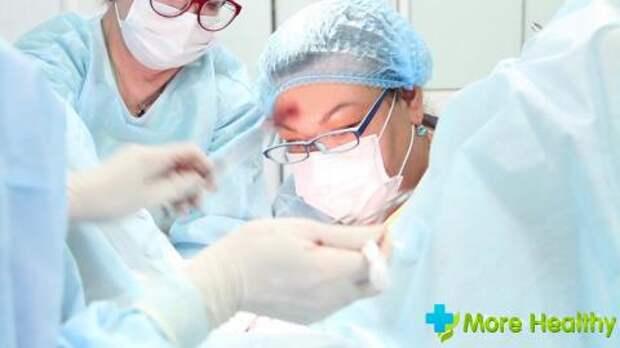 Признаки опущения матки, стадии, симптомы, современные методы терапии