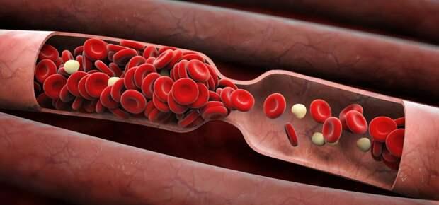 11 легких упражнений, которые помогут вам избежать застоя в крови