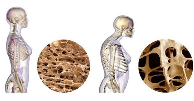 Лечение и профилактика остеопороза: 7 способов увеличения плотности костей