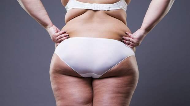 Как убрать жир с ляжек быстро и эффективно