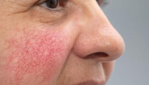 Как избавиться от сосудистой сетки на лице