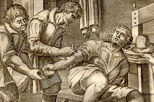 7 жутких и абсолютно нелепых методов лечения в истории медицины
