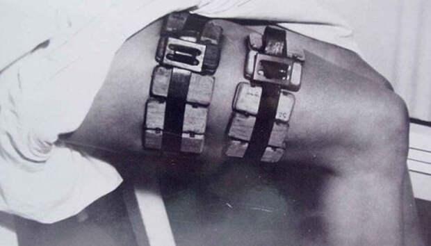 7 диких врачебных инструментов из прошлого