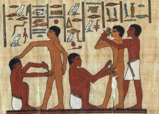 Обрезание древний египет, история, медицина