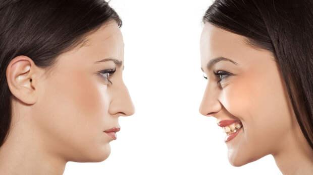 Грудные имплантаты в голову и вывернутые губы: есть ли предел трансформациям тела?