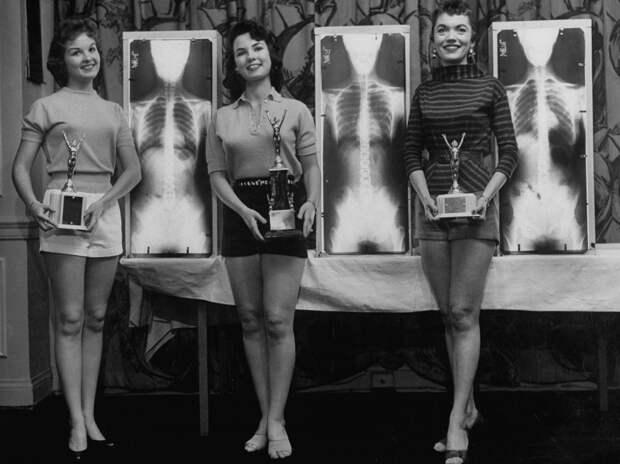 Рентген, отвес и весы: как выбирали «Мисс правильную осанку» в 50-е