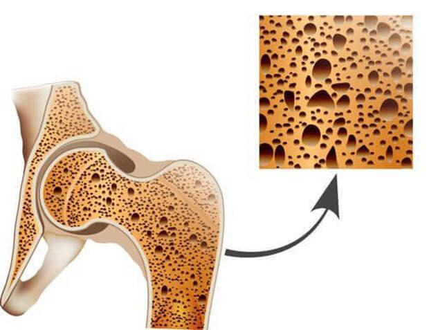 Разница между артрозом, артритом и остеопорозом: это нужно знать!