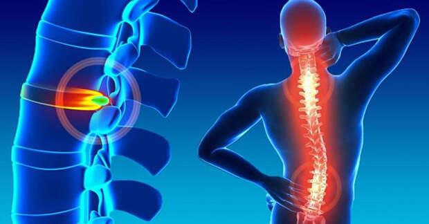 Дисковые грыжи: причины, симптомы и лечение
