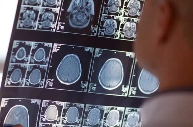 В Канаде люди страдают от неизвестного заболевания, поражающего мозг