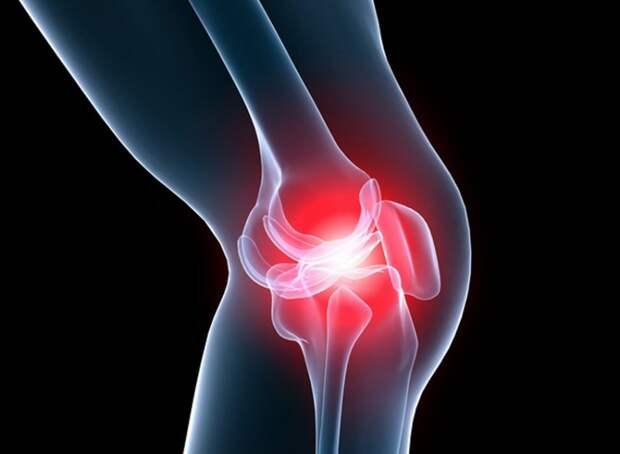 Дедова настойка спасла мне колени — боль ушла, и не возвращается!