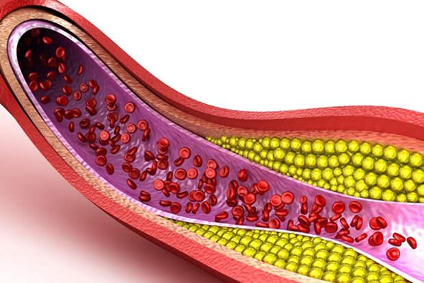 Что каждый человек должен знать о холестерине
