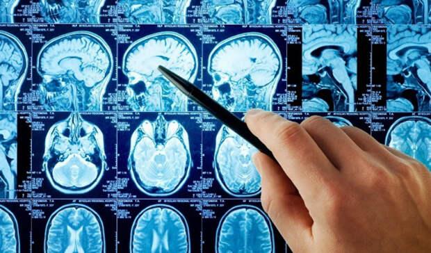 Признаки надвигающегося инсульта: как тело предупреждает об угрозе