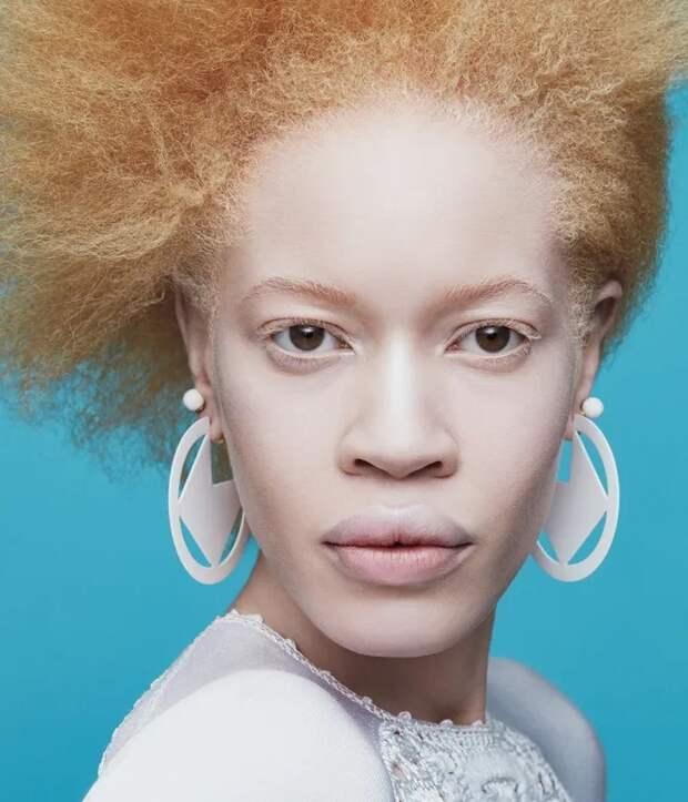 Косоглазие, альбинизм, возраст: 5 моделей, которые рвут шаблон красоты