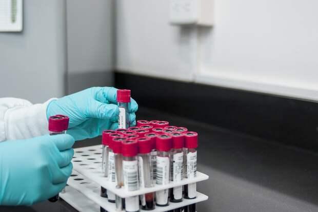 Назван вероятный срок запуска российской вакцины от COVID-19 в гражданский оборот