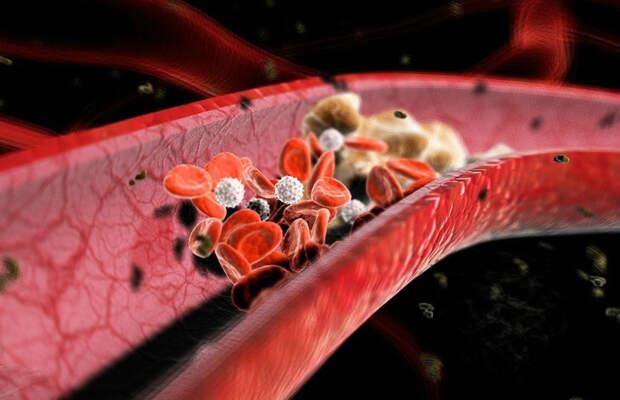 Картинки по запросу Профилактика образования тромбов