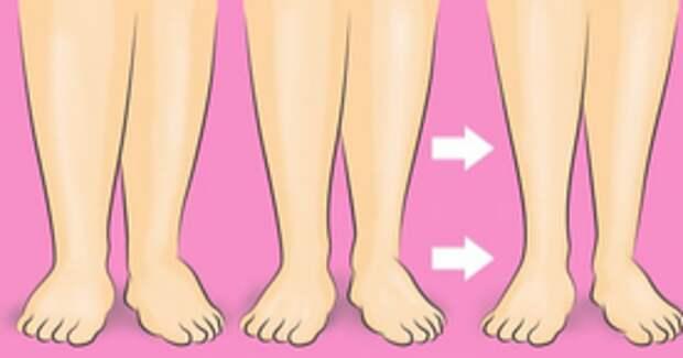 Опухшие ноги далеко в прошлом! Этот простой трюк поможет избавиться от отеков.
