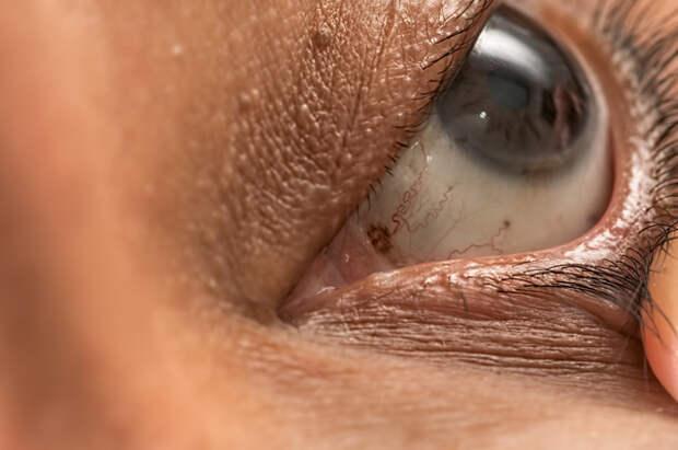 Как определить высокий холестерин по глазам