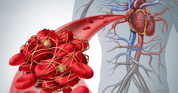 Симптомы тромба: как определить, есть ли он у вас