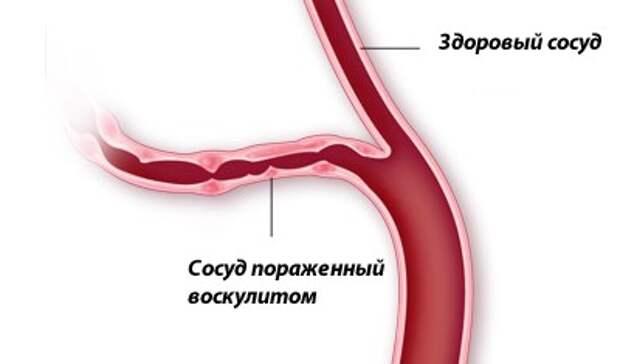 Картинки по запросу Геморрагический васкулит