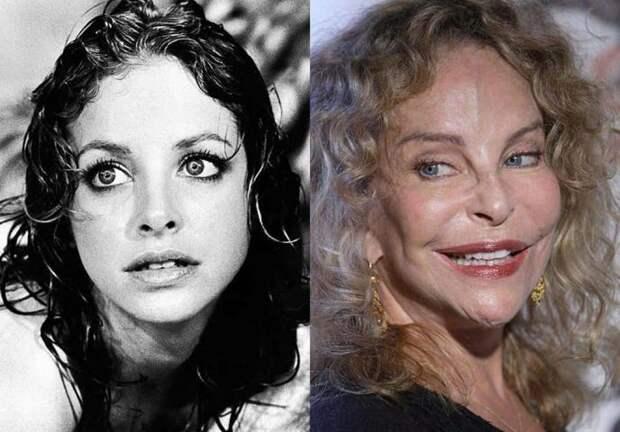 Красивые и известные женщины, которые загубили свою красоту пластикой
