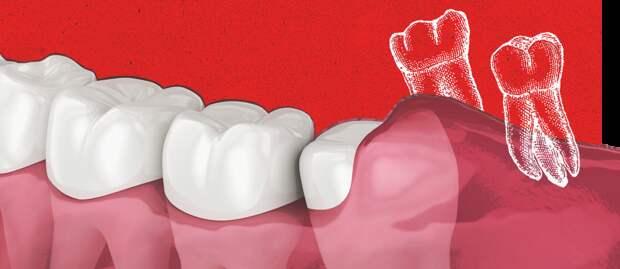 4 проблемы с зубами, которые нужно решить как можно скорее