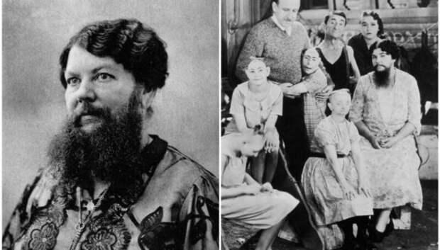 9 «бородатых женщин», которые вошли в историю
