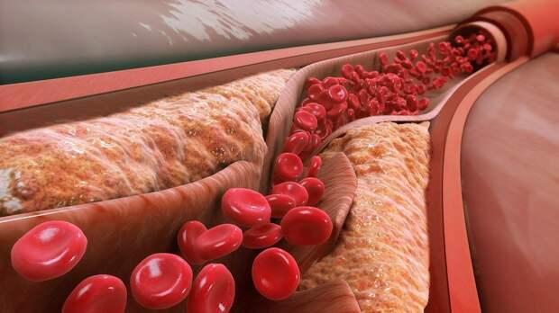 Ученые рассказали о полезных свойствах холестерина
